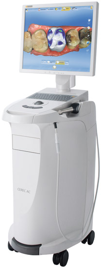 cerec-scanner